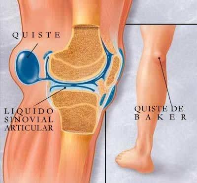 porque se produce liquido sinovial en la rodilla