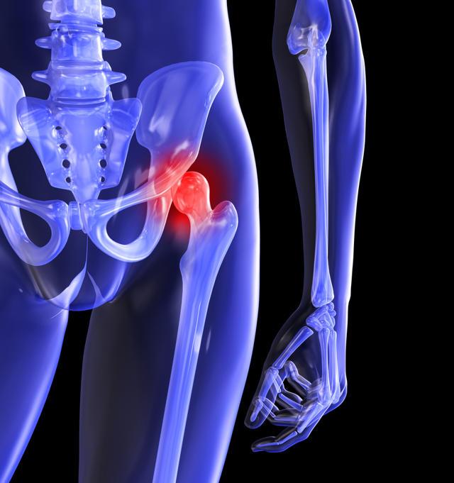 Trocanteritis o Bursitis de cadera - FisioDual. Fisioterapia y ...